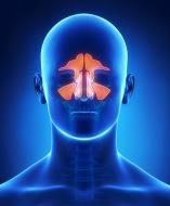 פוליפים באף סימפטומים