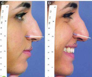 הרמת קצה האף לפני ואחרי