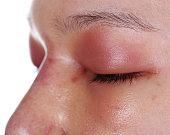 הרמת קצה האף ללא ניתוח